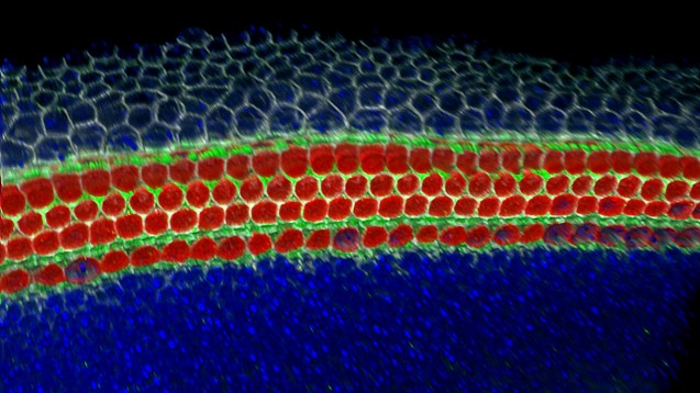 New Player Identified in Hair Cell Development